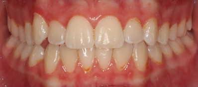 vorher/nachher Zahnkorrektur – Jugendliche Patientin / Invisalign