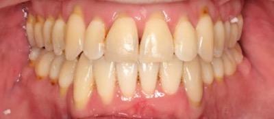 vorher/nachher Zahnkorrektur – 56 jähriger Patient / Invisalign