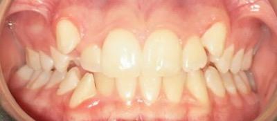 vorher/nachher Zahnkorrektur – Jugendl. Patient / Feste Spange