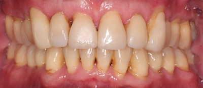 vorher/nachher Zahnkorrektur – 62 jähriger Patient / Invisalign