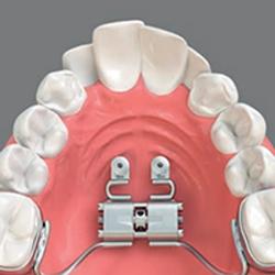 Leistungen Smile-first Praxis Miesbach Implantate