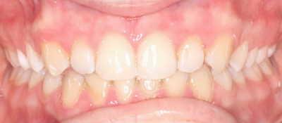 vorher/nachher Zahnkorrektur – Jugendlicher Patient / Invisalign