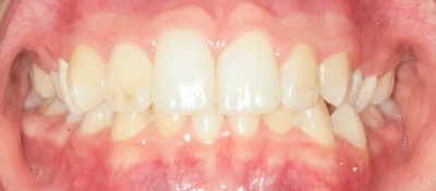 vorher/nachher Zahnkorrektur – 28 jährige Patientin / OP + Invisalign