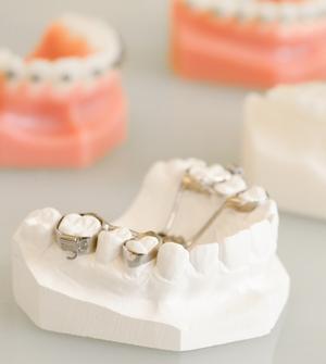 Smile-first Miesbach Kieferorthopädie Implantate