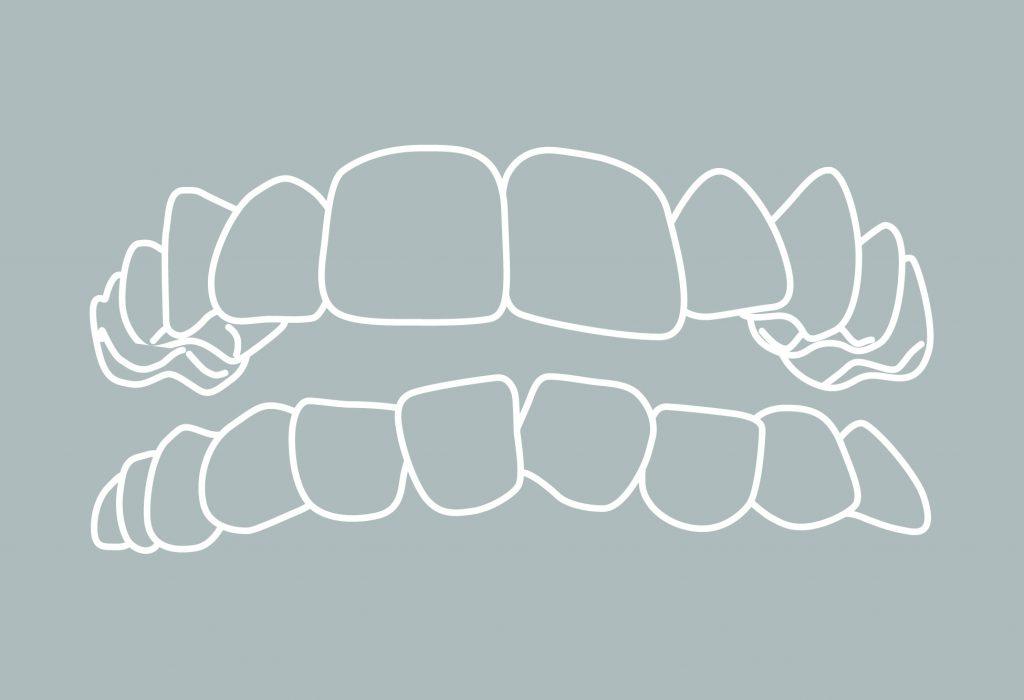 4 Zahnfehlstellungen Engstand