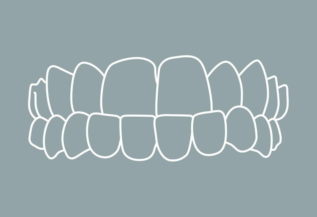 6 Zahnfehlstellung Kieferfehlstellung