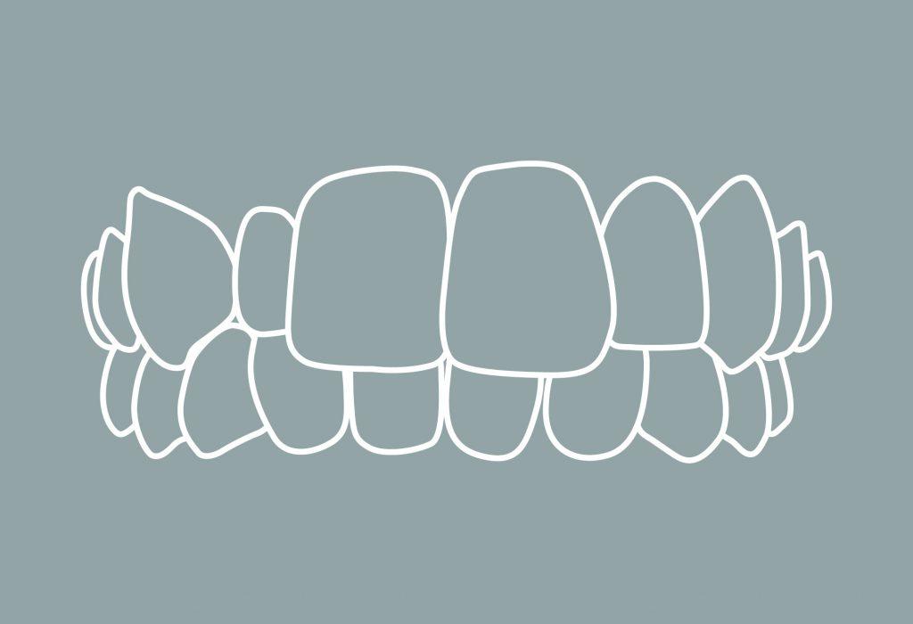 2 Zahnfehlstellungen Kreuzbiss