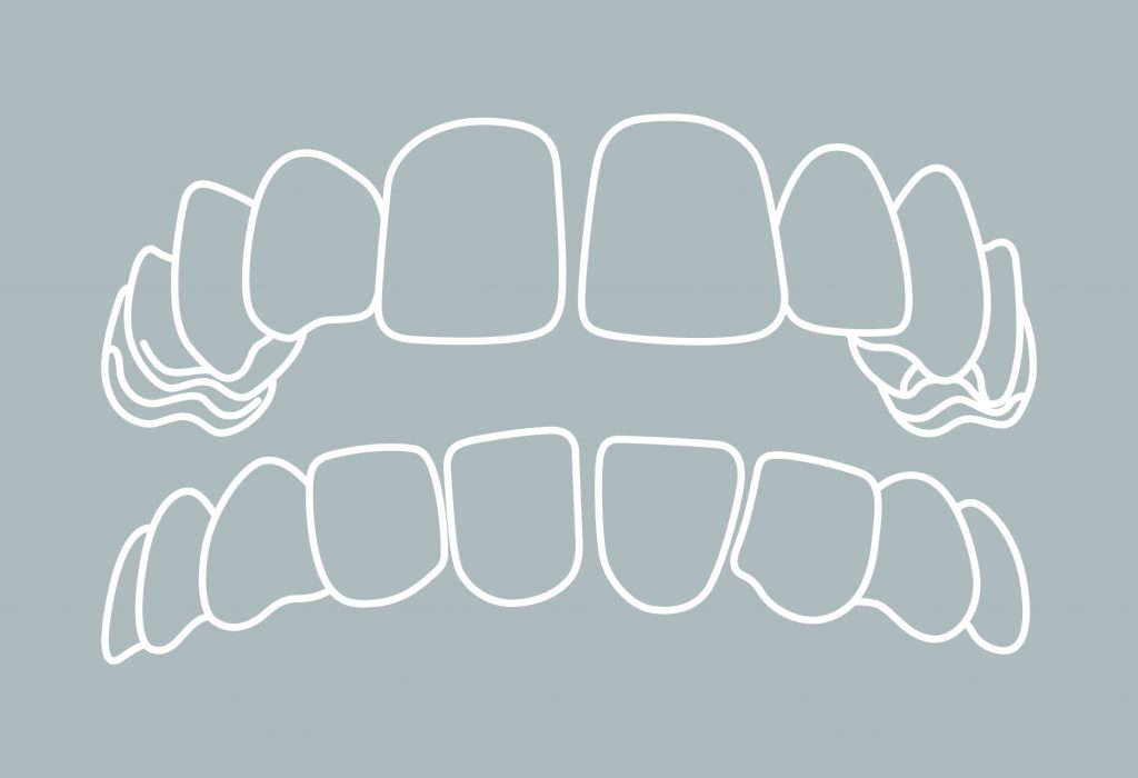 3 Zahnfehlstellungen Lückenstand