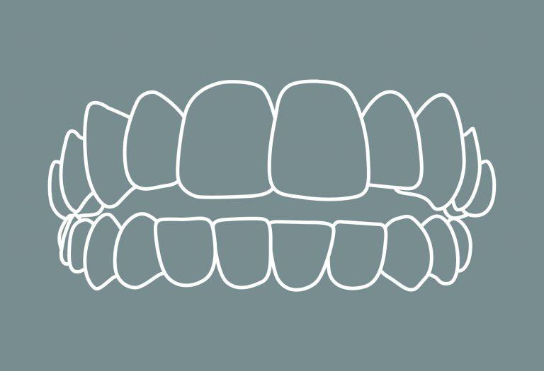 1 Zahnfehlstellungen Offener Biss