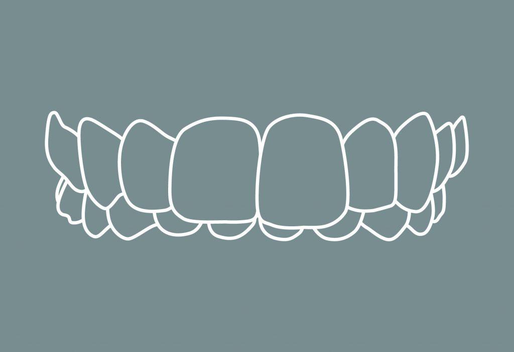 5 Zahnfehlstellungen Tiefbiss